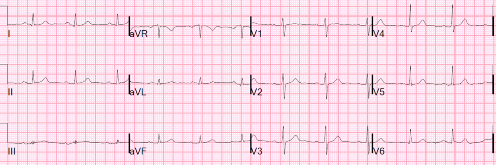 Interpretation: Normal. http://hqmeded-ecg.blogspot.com/2015/06/unstable-angina-still-exists-beware.html?m=1