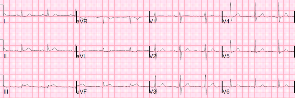 Interpretation: ST-elevation II, III, aVF, ST-depression I, aVL, RCA occlusion. http://hqmeded-ecg.blogspot.com/2015/06/unstable-angina-still-exists-beware.html?m=1