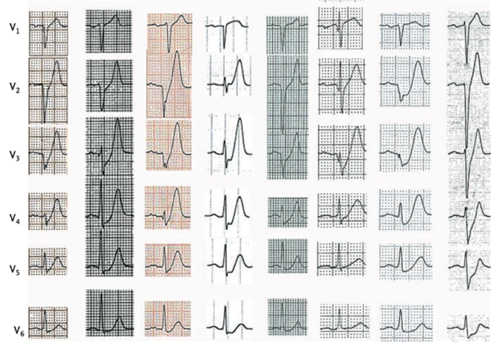De winter RJ, Verouden NJ, Wellens HJ, Wilde AA. A new ECG sign of proximal LAD occlusion. N Engl J Med. 2008;359(19):2071-3. http://www.ncbi.nlm.nih.gov/pubmed/?term=PMID%3A+18987380