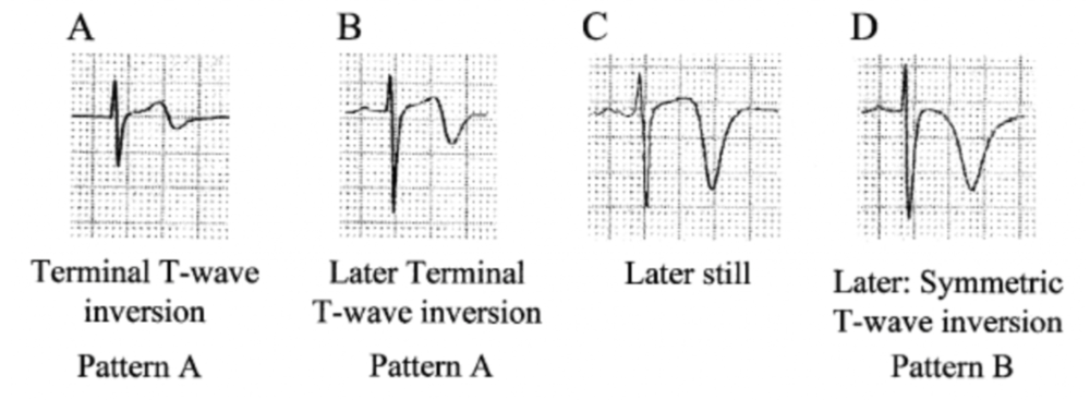 "Verouden NJ, Koch KT, Peters RJ, et al. Persistent precordial ""hyperacute"" T-waves signify proximal left anterior descending artery occlusion. Heart. 2009;95(20):1701-6. http://www.ncbi.nlm.nih.gov/pubmed/19620137"