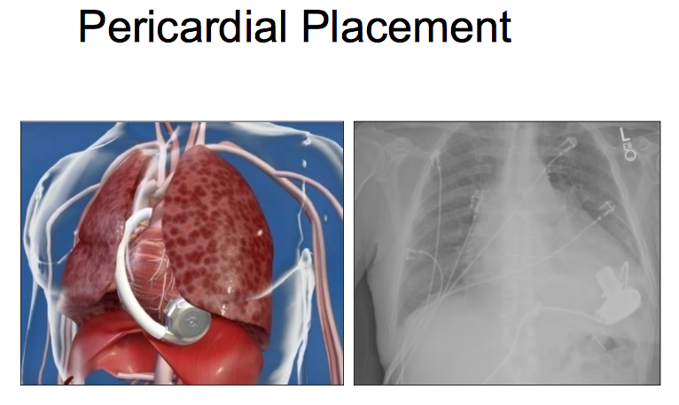 Pericardial placement of the HeartWare LVAD