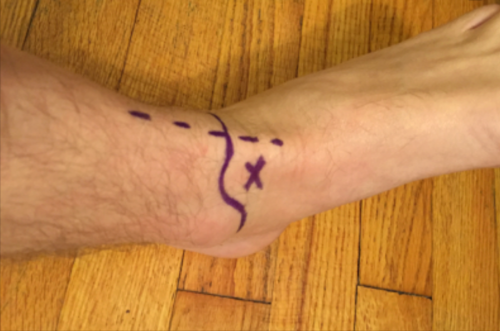 Ankle Joint Arthrocentesis Landmarks