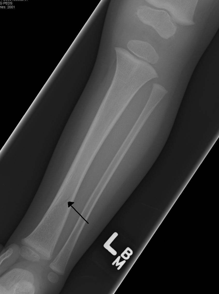 https://upload.wikimedia.org/wikipedia/commons/e/e1/Tibfracture.png