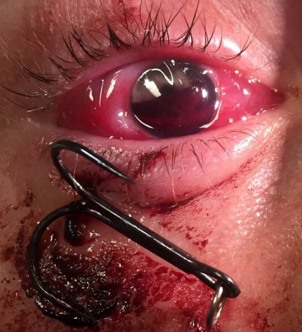 The patient with a fishhook penetrating his eye. Note the presence of a hyphema. Consent was given by the patient for the use of this image.
