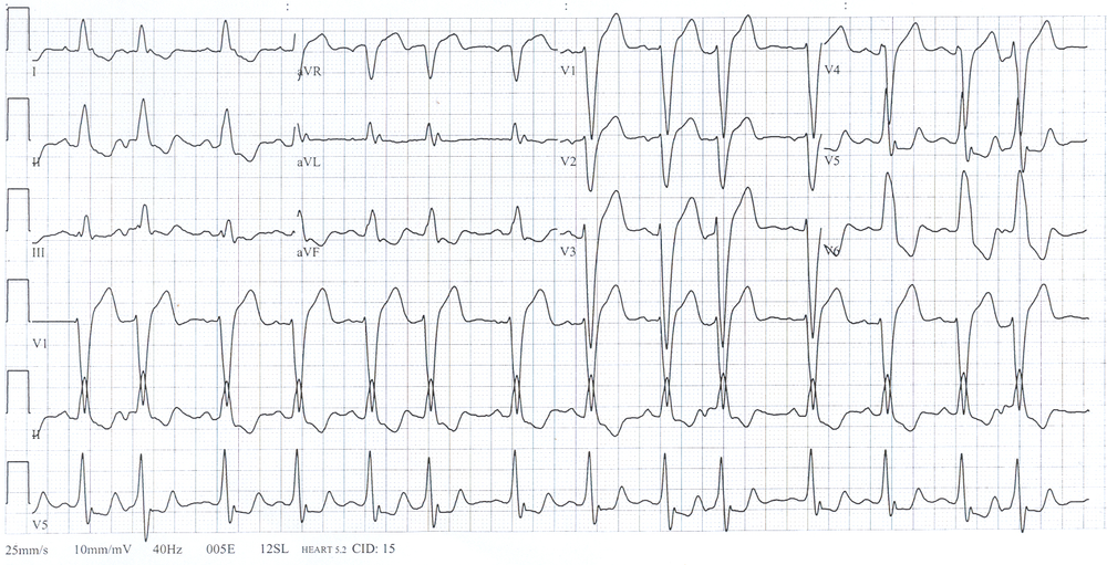LBBB. By Steven Fruitsmaak (Own work) [CC BY-SA 3.0 (http://creativecommons.org/licenses/by-sa/3.0) or GFDL (http://www.gnu.org/copyleft/fdl.html)], via Wikimedia Commons