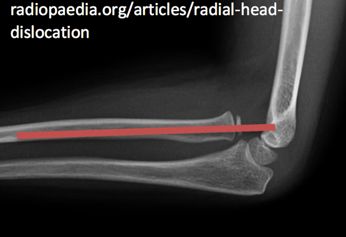 Radial Head Dislocation (radiocapitellar line does not intersect capitellum)