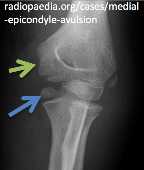 Interpreting Elbow And Forearm Radiographs Taming The Sru