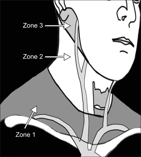 (1) Figure 5. Zones of the neck.  https://openi.nlm.nih.gov/detailedresult.php?img=PMC3214866_cmj-47-134-g005&req=4
