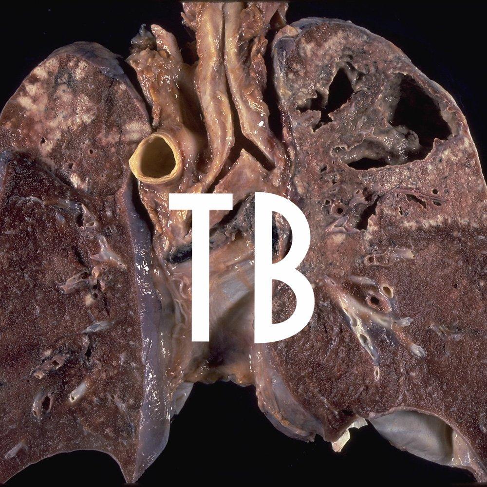 Cavitary_tuberculosis.jpg