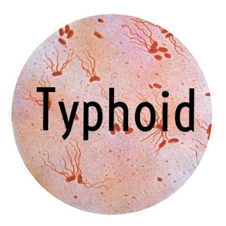 Typhoid.jpg