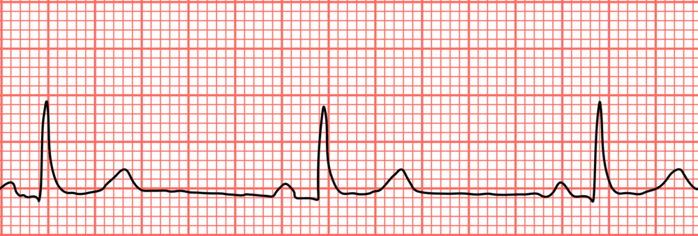 Sinus Bradycardia - via wikimedia - https://upload.wikimedia.org/wikipedia/commons/thumb/f/f9/Sinus_bradycardia_lead2.svg/2000px-Sinus_bradycardia_lead2.svg.png
