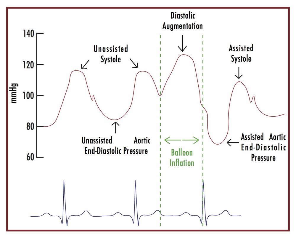 Figure 2. This cartoon illustrates how IABP inflation, starting at the beginning of diastole, augments diastolic blood pressure. By augmenting and increasing the diastolic pressure, coronary perfusion is improved. IABP balloon deflation, starting at the end of diastole, decreases the aortic end-diastolic pressure, decreasing afterload. THIS WORK IS LICENSED UNDER A CREATIVE COMMONS ATTRIBUTION-NONCOMMERICAL-SHARELIKE 4.0 INTERNATIONAL LICENSE.