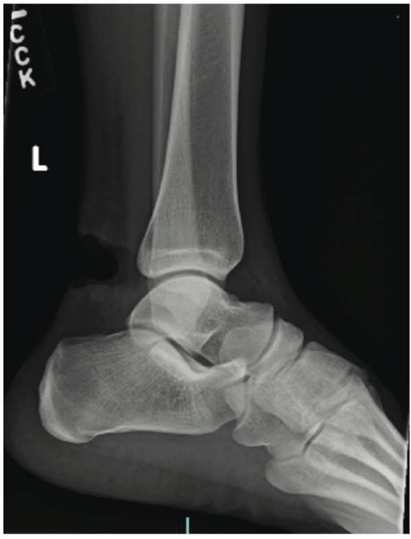 Plain film radiographs of the left heel show a large soft tissue defect without evidence of osseous abnormalities or foreign bodies.