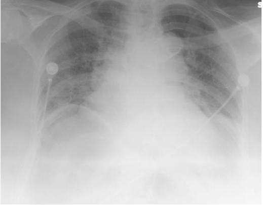 Pneumoperitoneum in the right upper quadrant.