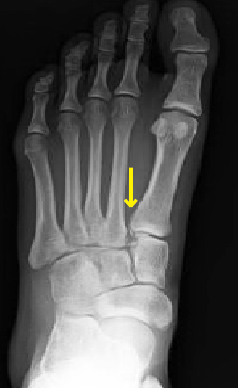 Weight bearing film revealing widening of the Lisfranc interval and a small lucency on the medial aspect of the base of the first metatarsal (arrow).