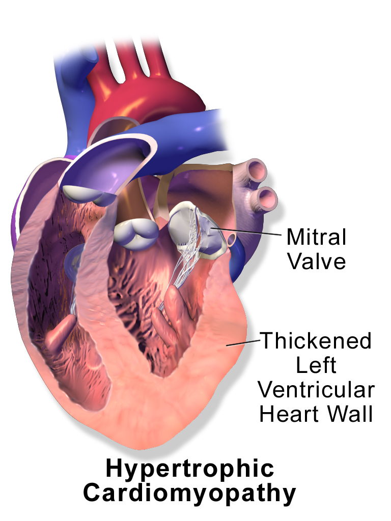 Blausen_0166_Cardiomyopathy_Hypertrophic.png