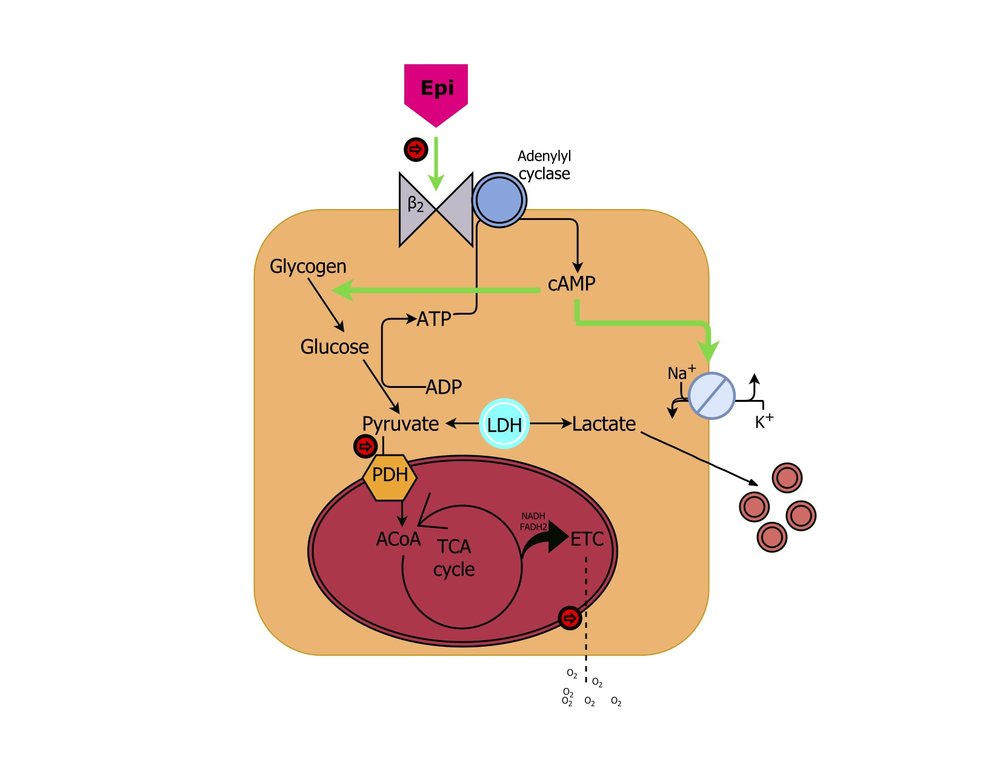 Figure 1 - Mechanisms leading to lactate production in a skeletal myocyte. Pathway 1 – epinephrine binds beta2 receptors, triggering a rise in intracellular Camp, which in turn activates both the Na/K ATPase (producing ADP and favoring pyruvate production) and increases glycogenolysis, as well as glycolytic flux. Pathway 2 – Pyruvate dehydrogenase converts pyruvate to acetyl CoA for the tricarboxylic acid cycle. If cofactors, such as thiamine, are diminished, PDH activity is suboptimal, favoring lactate production. Pathway 3 – oxygen deficit leads to decreased throughput of the electron transport chain, again inhibiting the TCA cycle and shunting pyruvate to lactate. ILlustration by Chris Shaw, MD