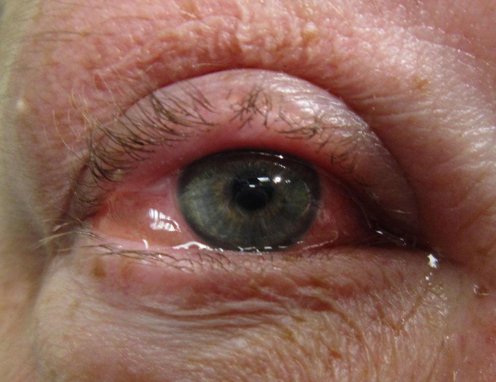 Figure 8. Allergic Conjunctivitis.  Courtesy of Wikimedia Commons (14).