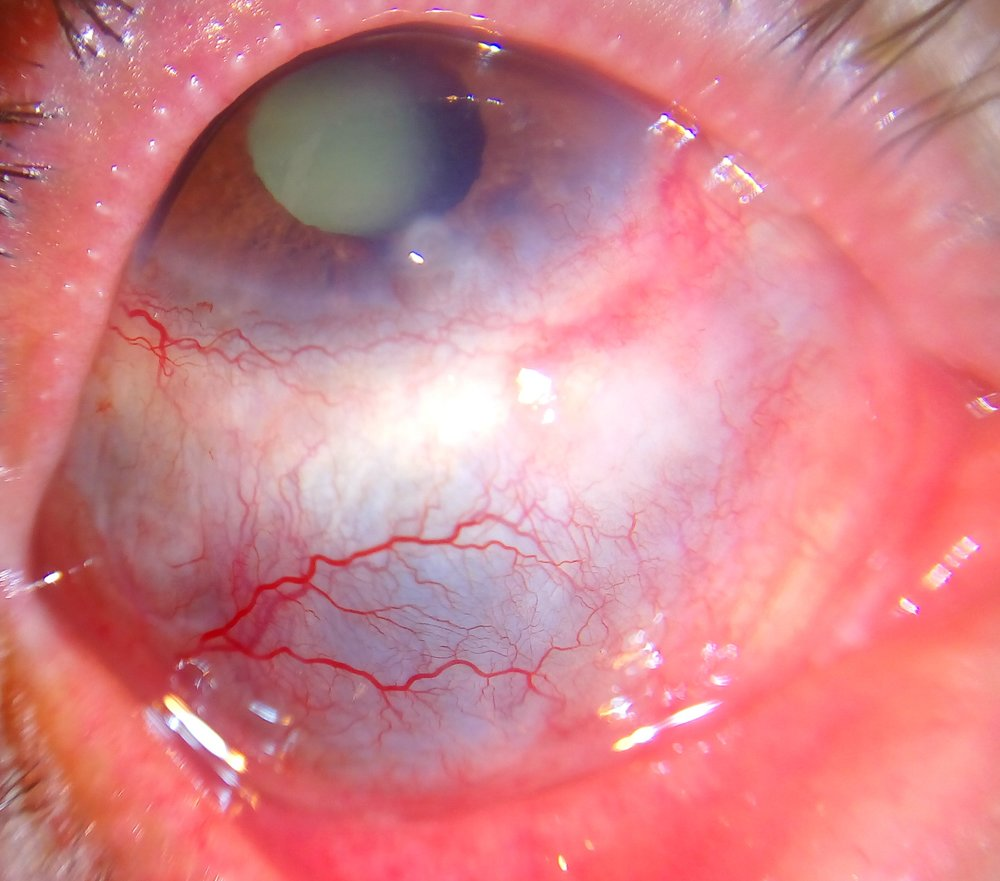 Figure 1.  Scleritis.  Courtesy of Wikimedia Commons (6).