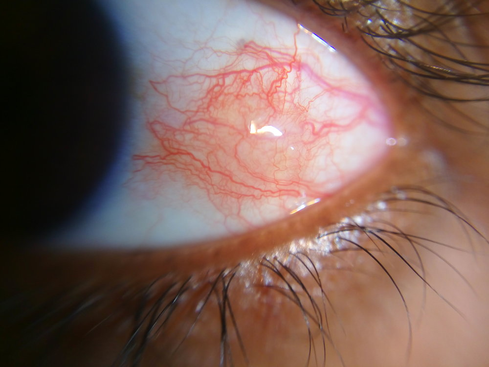Figure 2.  Episcleritis.  Courtesy of Wikimedia Commons (7).