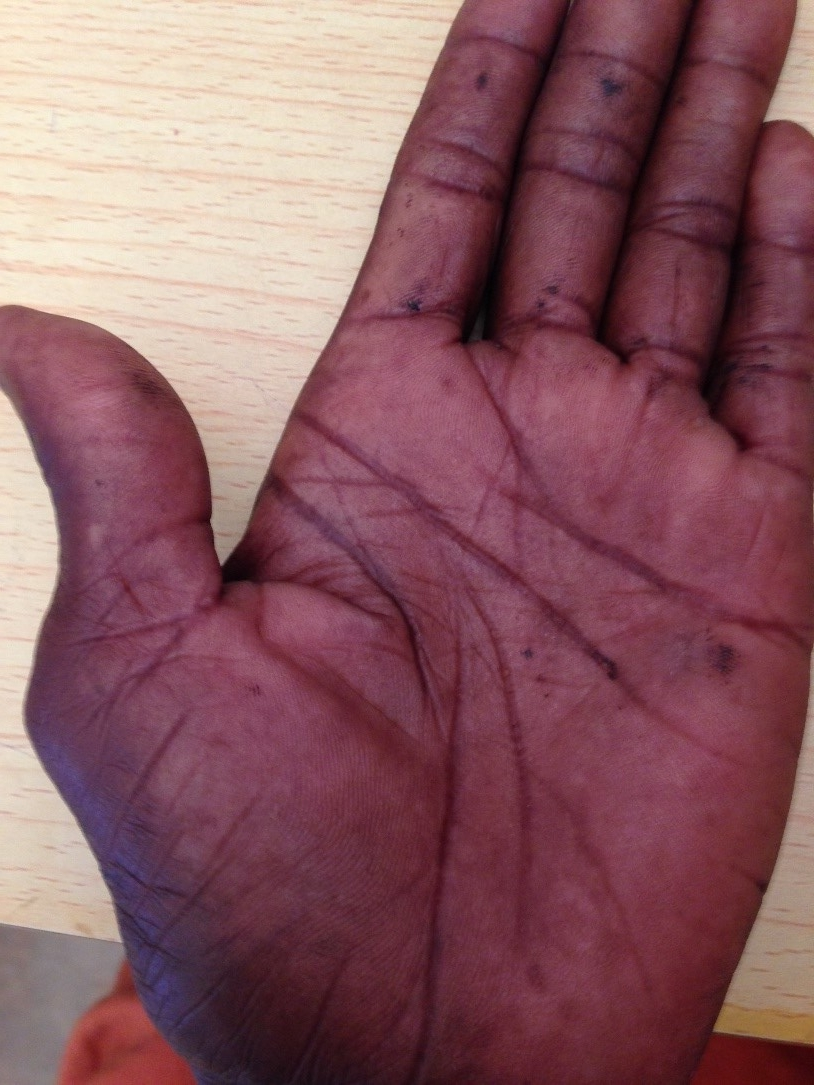 Image of the patient's rash on the palmer aspect of his left hand. Image was taken with the patient's permission.