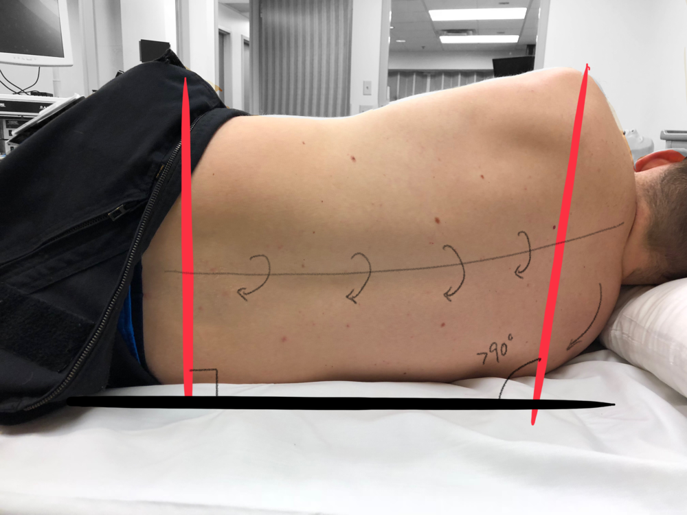 Image 3 - Poor Lateral Decubitus Position  - Note that in this case the patients right shoulder is slightly forward introducing a subtle rotation throughout the spinal column, making external landmarks more difficult to appreciate