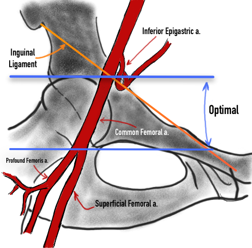 Figure 3 - Branches of the Iliac and Common Femoral Arteries