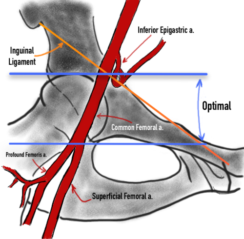 The Anatomy of Femoral Vascular Access — Taming the SRU