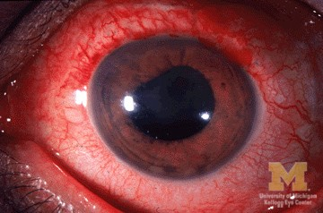 Figure 2. Uveitis.  Courtesy of Wikimedia commons and Jonathan trobe, MD.