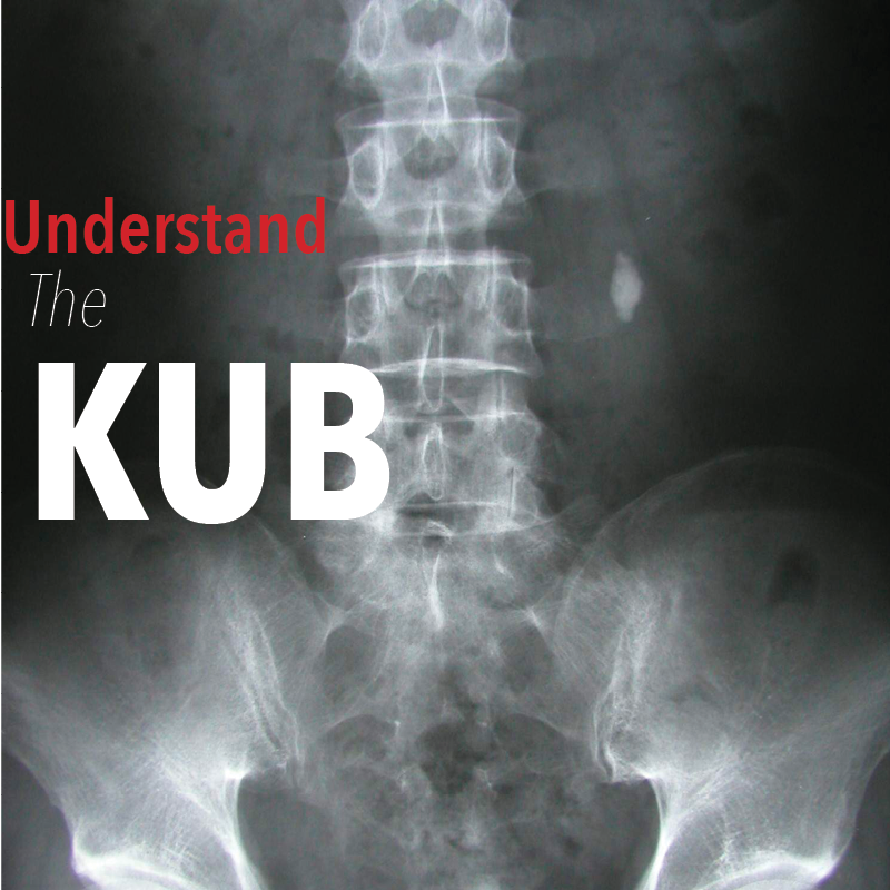 The Abdominal XRay: A relic or a reliable tool? — Taming the SRU