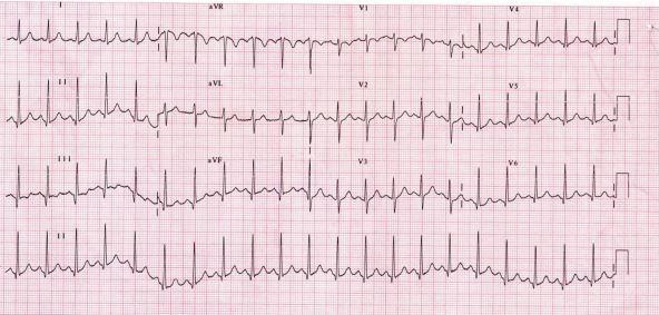 Adult EKG photo.JPG