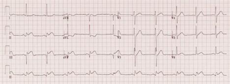 Image 1. EKG.