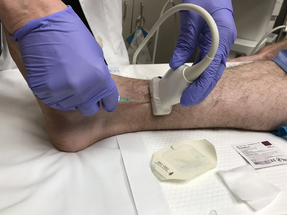 probe and angiocath positioning for cannulation. Also you may consider in-plane technique.
