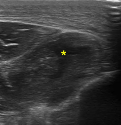 Note the hypoechoic region in the center of the muscle belly