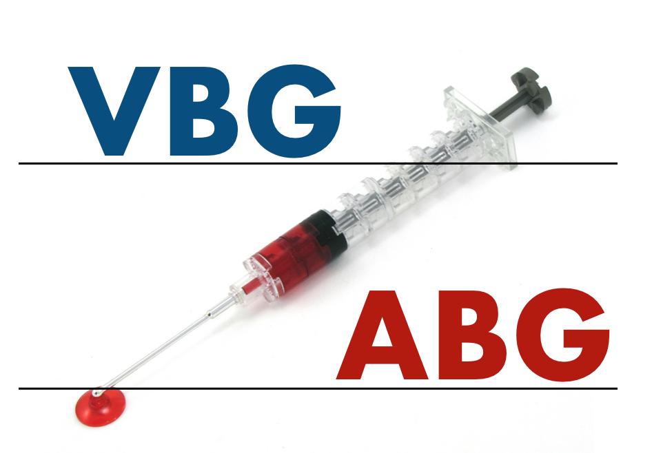 vbg abg logo.png