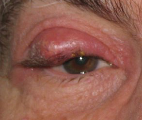 Figure 2. Chalazion.  Courtesy of wikimedia commons (10).