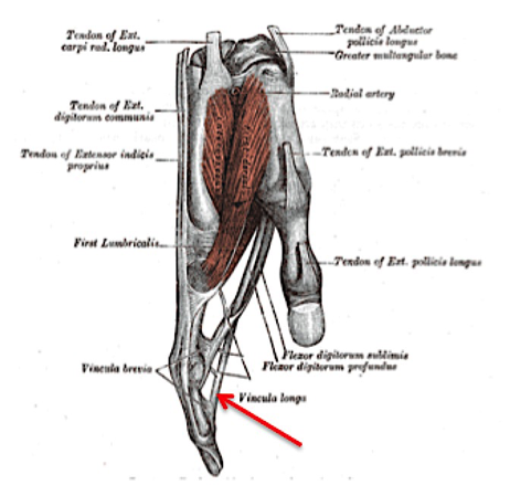Figure 2. Location of Injury in Jersey Finger [6]