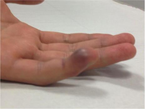 Image 2. Volar Edema of Distal Phalanx observed in Jersey Finger [9]