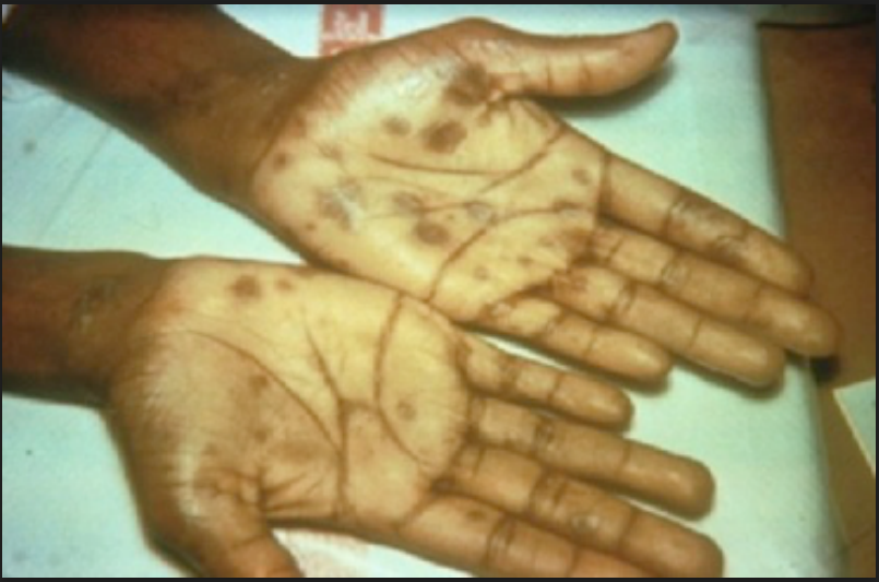 Figure 1. palmar lesions noted on the patient.