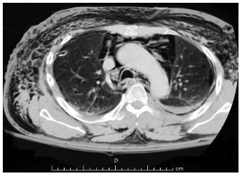 figure 2. representative single-slice axial CT showing extensive pneumomediastinum.(17)