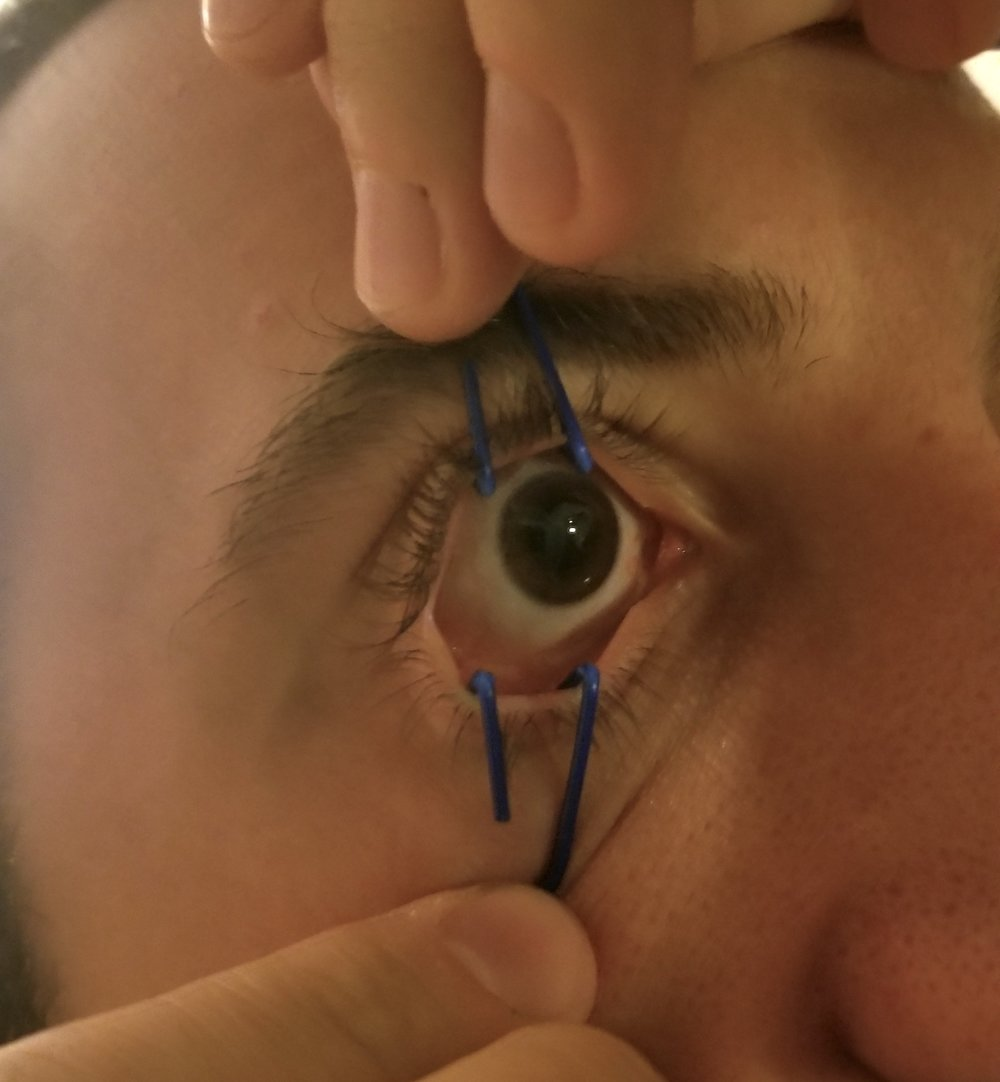 Image 2  - Paperclip Eyelid Retractors in Action  Photo courtesy of Michael Spigner, MD, PGY-3 University of Cincinnati Department of Emergency Medicine
