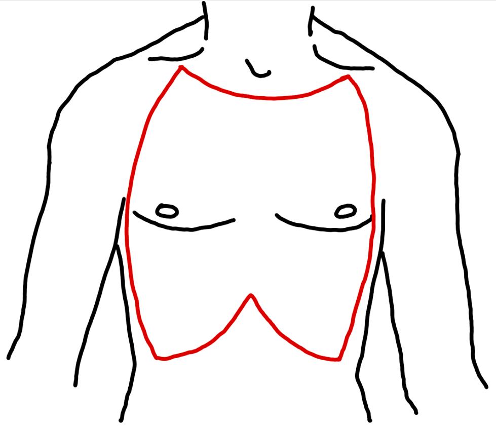 Figure 1: chest wall escharotomy