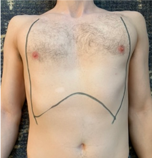 picture 1. Incision sites for chest wall escharotomy