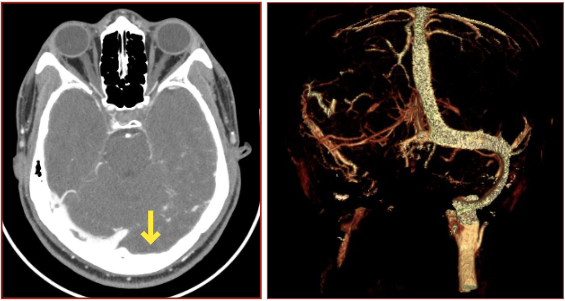 images 1&2: left - representative ctv, yellow arrow indicating lack of venous flow in the left transverse sinus. right - representative ctv of thrombosis of left transverse sinus, left sigmoid sinus.