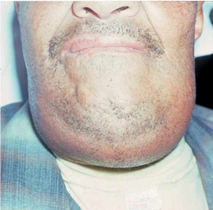 "Fig. 2  ""Brawny"" swelling involving submandibular space typical of Ludwig's Angina.  [Image from medical-dictionary.thefreedictionary.com/]"
