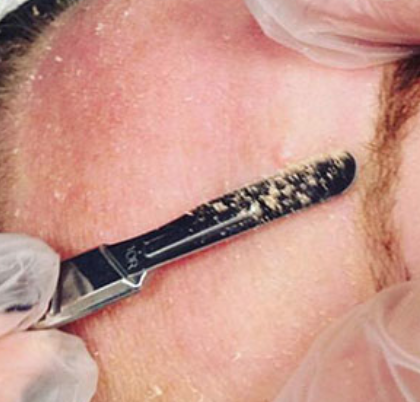 "A clear view of dermal ""cornflake"" layers being removed during dermaplaning."