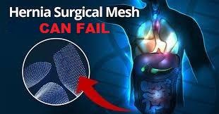 mesh can fail.jpg