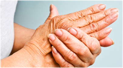 istock_rf_photo_of_arthritis_pain_in_hand.jpg