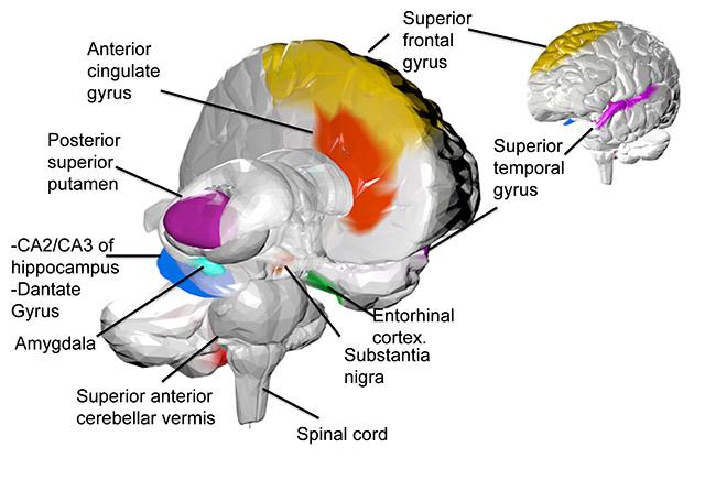 Brain3D.jpg