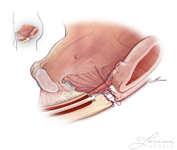 Prostate removal procedure